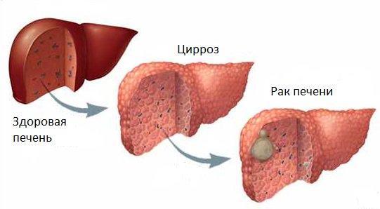 Цирроз и рак печени как причина боли в правом подреберье