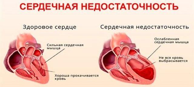 Сердечно-сосудистые патологии в качестве источника боли