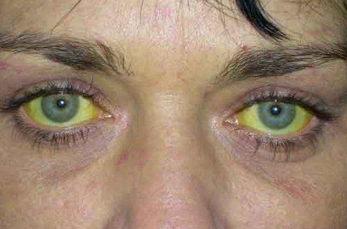Один из симптомов гепатита