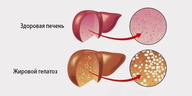 Жировой гепатоз как причина боли