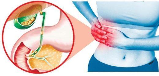 Желчнокаменная болезнь как причина боли в правом подреберье