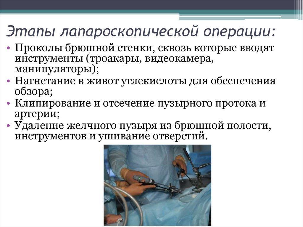 Холецистэктомия ход операции