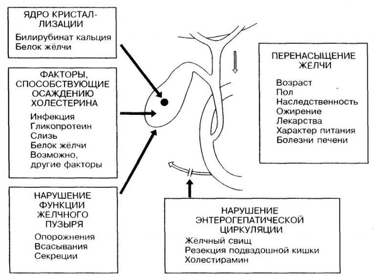 ЖКБ - факторы развития
