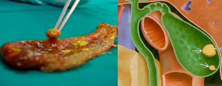 Фото и анатомия полипа в желчном пузыре
