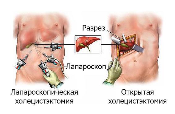 Техники холецистэктомии