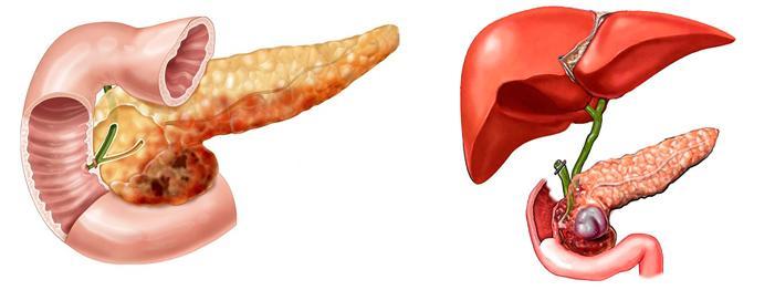 Как выглядит холецистит и панкреатит