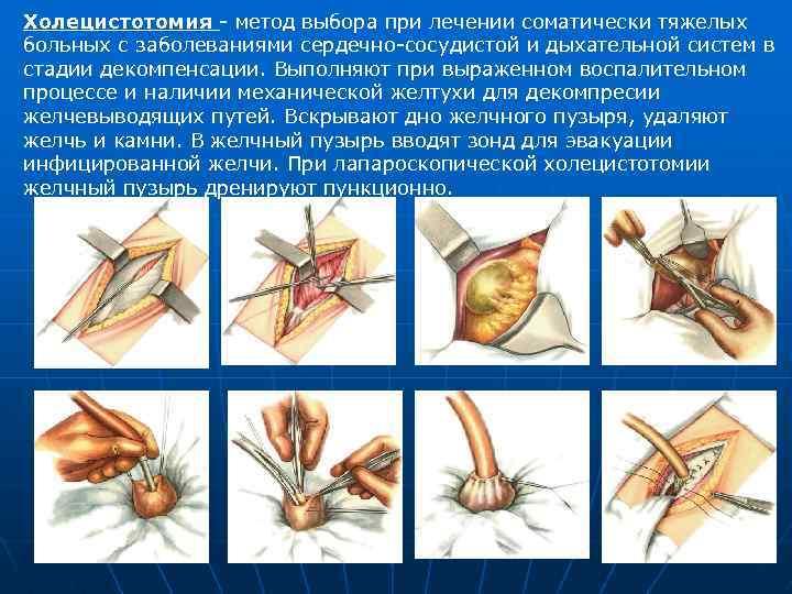 Холецистотомия - описание и процесс