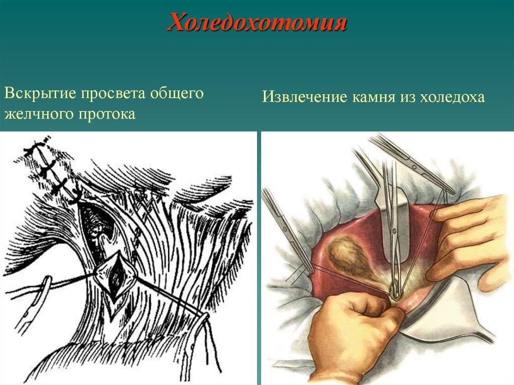 Операция на желчном пузыре
