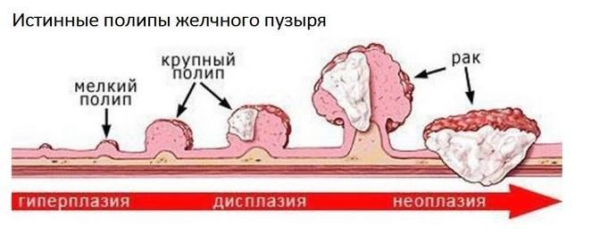 Рак и полип
