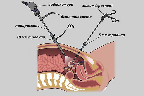 Анатомия лапароскопической операции
