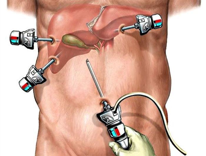 Хирургическое удаление желчных камней