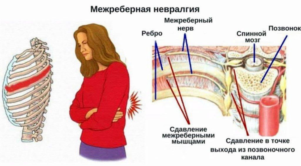 Анатомия межреберной невралгии