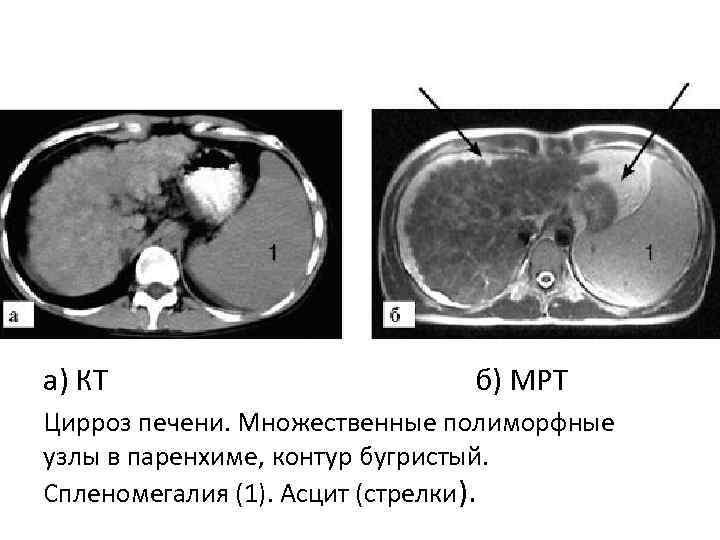 Расшифровка МРТ и КТ печени
