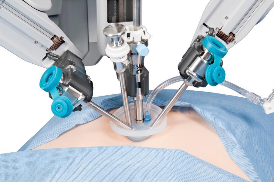 Da Vinci хирургия