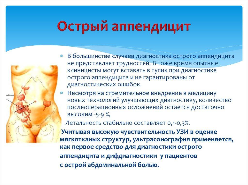 Определение и анатомия острого аппендицита
