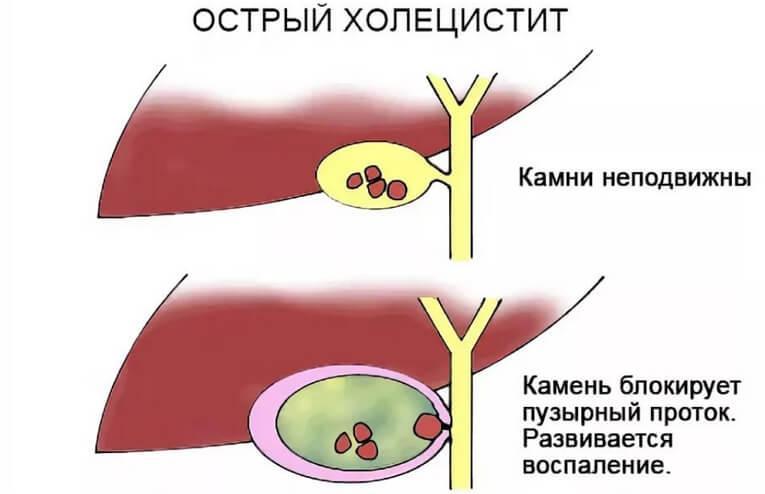 Острое воспаление желчного пузыря