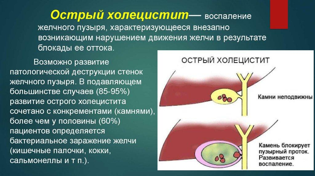 Острый холецистит - описание и анатомия