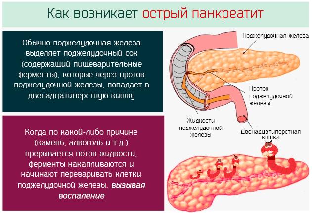 Острый панкреатит - как возникает