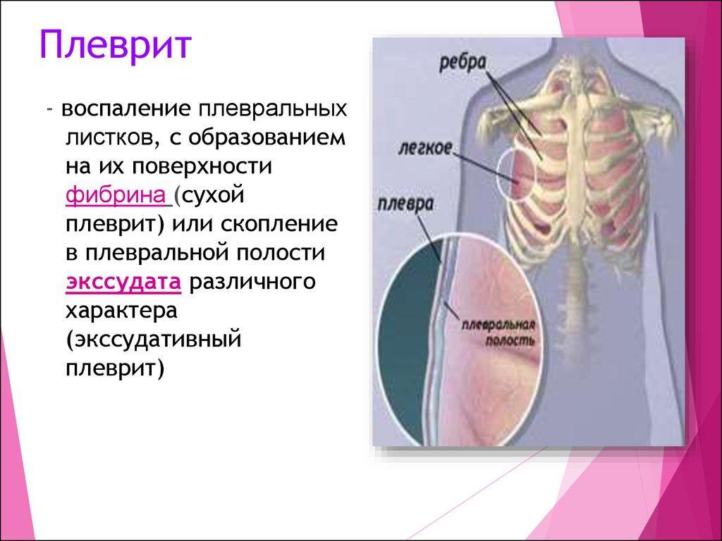 Плеврит - определение и анатомия