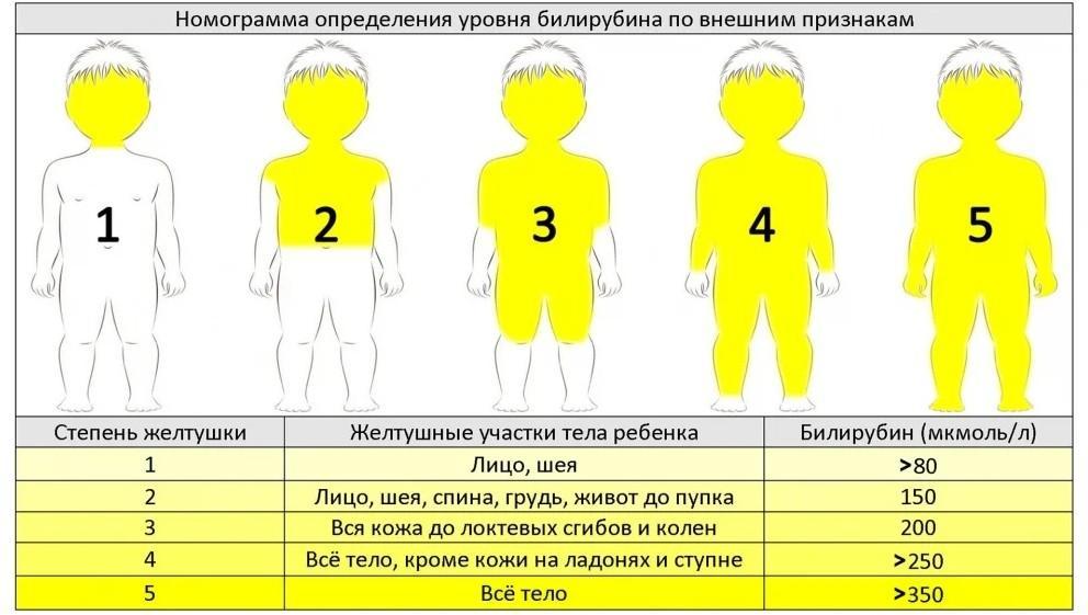Уровни желтухи по внешним признакам - таблица