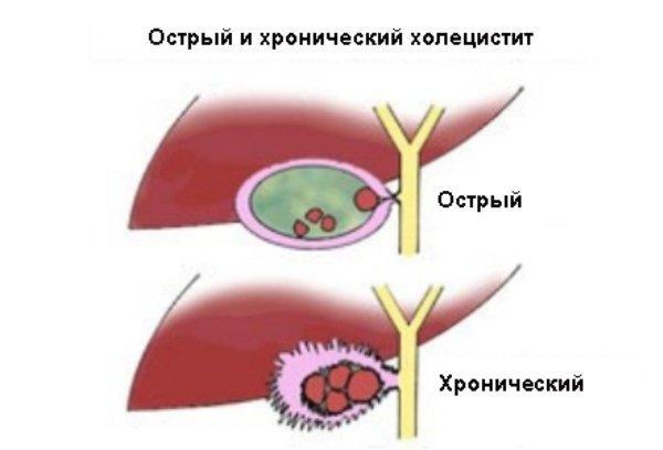 Анатомия острого и хронического холецистита