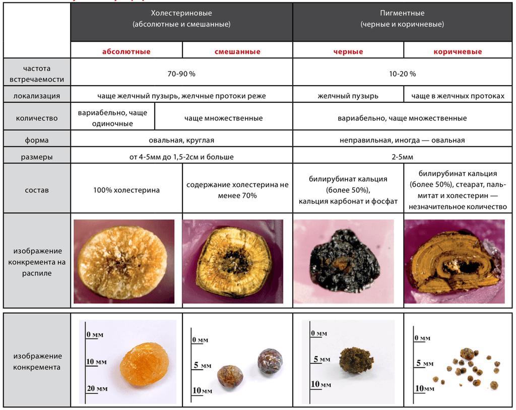 Виды конкрементов в желчном пузыре - таблица