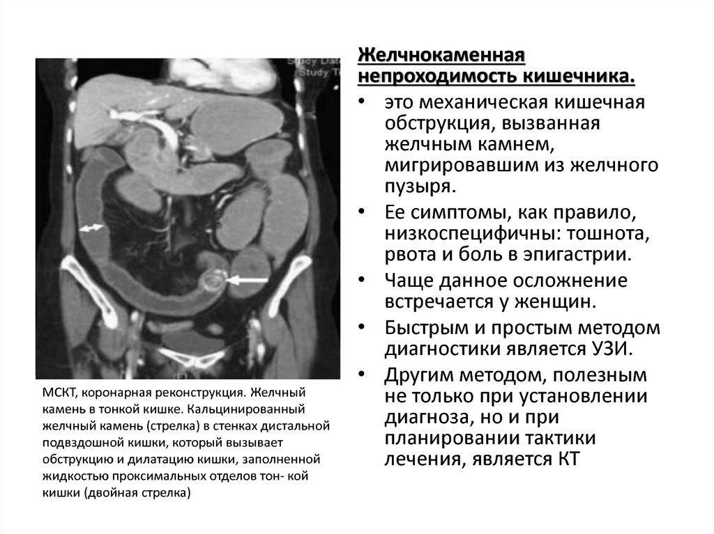ЖКБ непроходимость кишечника - определение и анатомия