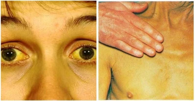 Желтушность кожи и слизистой оболочки
