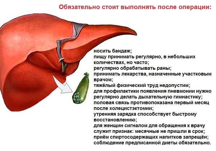 Что делать после холецистэктомии