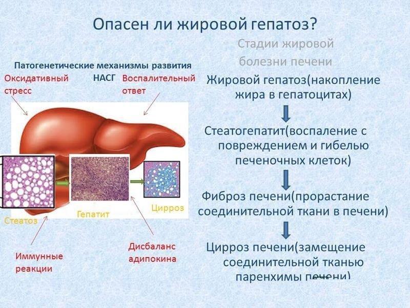 Опасен ли жировой гепатоза печени
