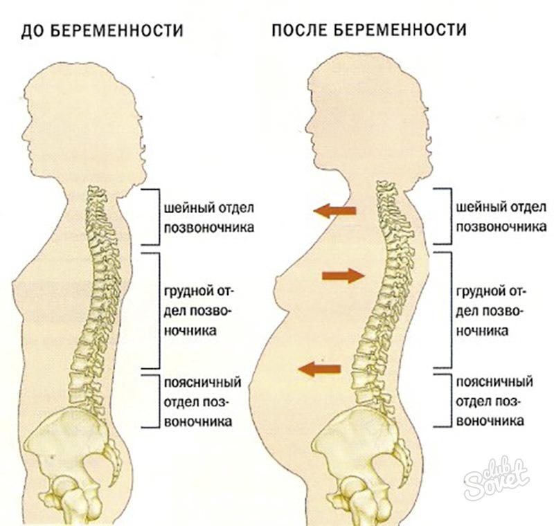 Остеохондроз после родов