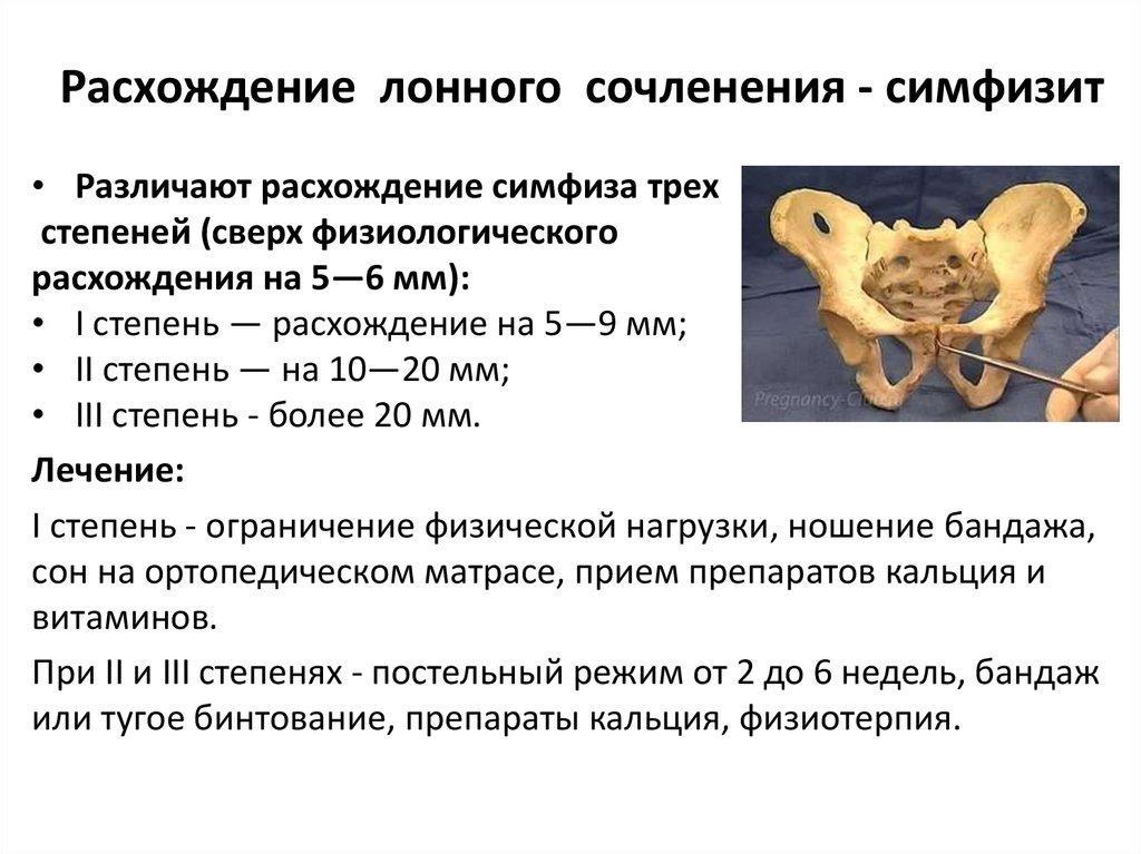 Расхождение костей лонного сочленения