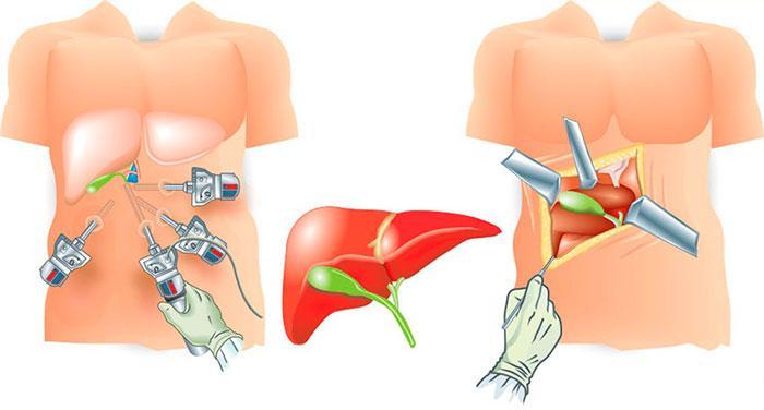 открытый и лапароскопический способ операции