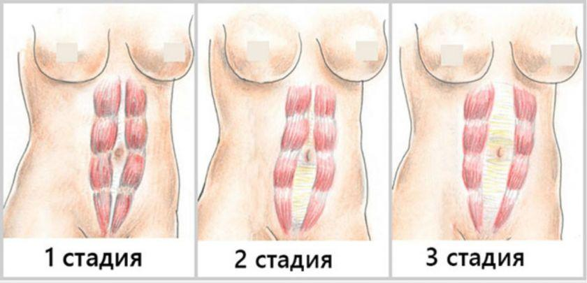 Стадии расхождения прямых мышц живота