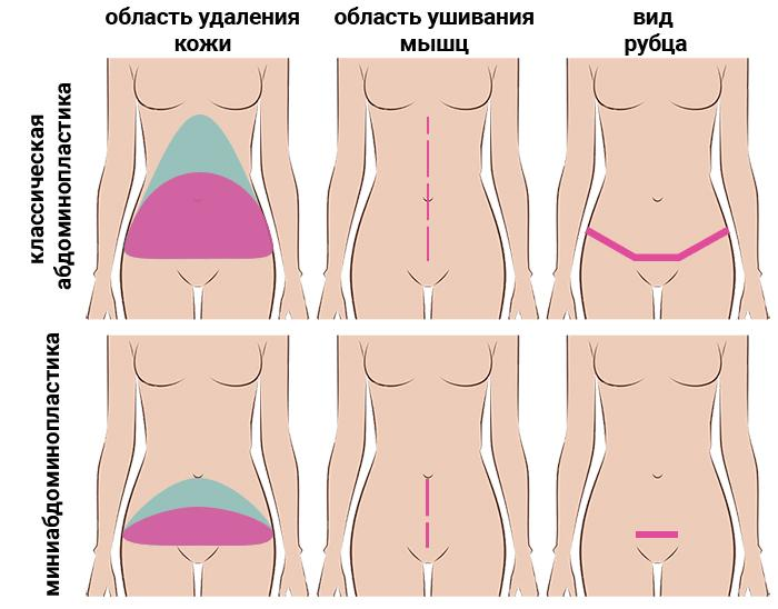 Разновидности абдоминопластики