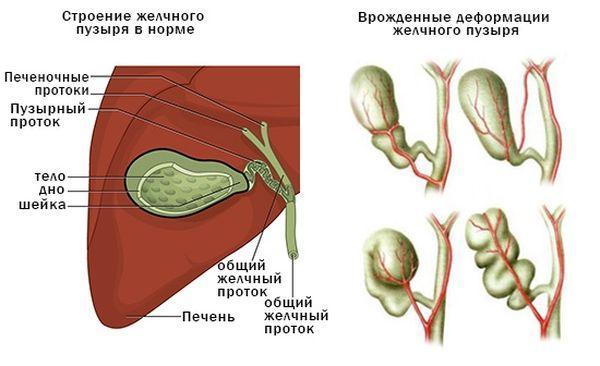 ЖП в норме и при аномалиях