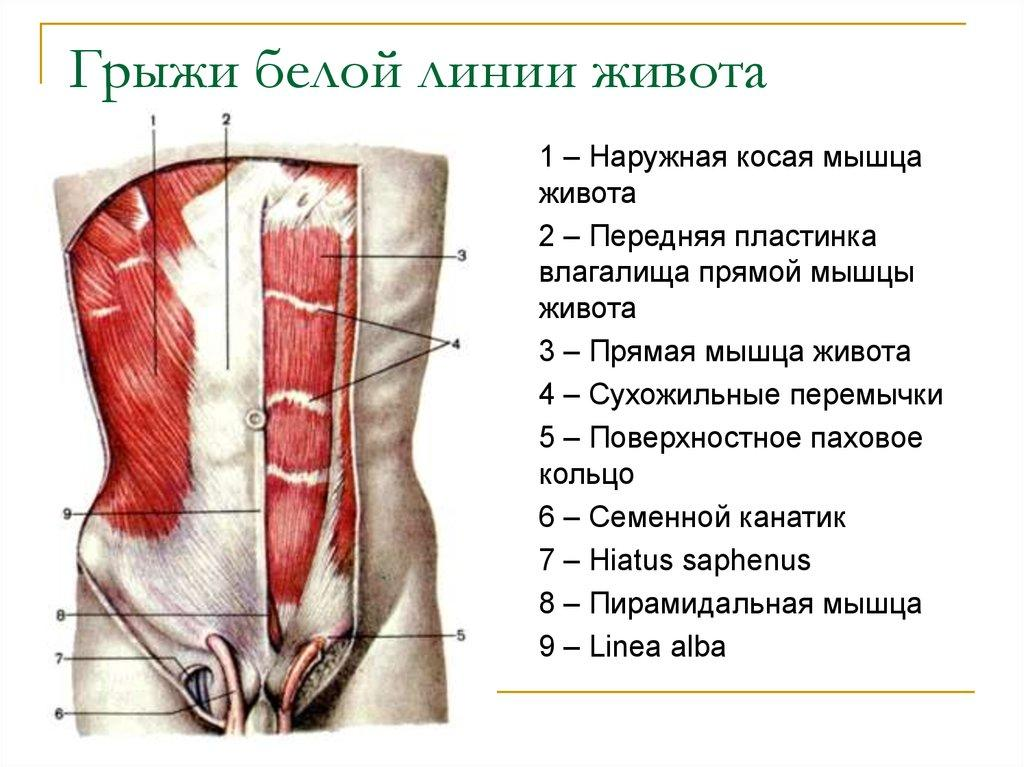 Анатомия грыжи прямой линии живота