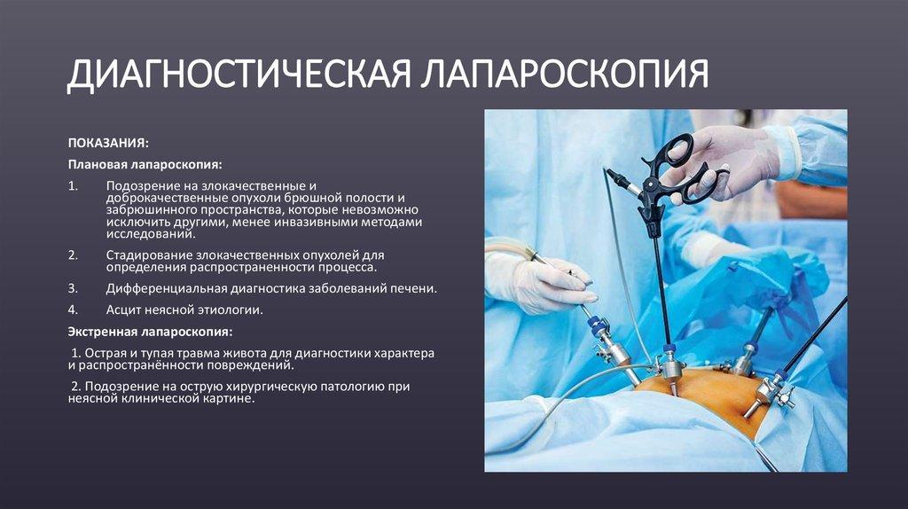 Диагностическая лапароскопическая хирургия