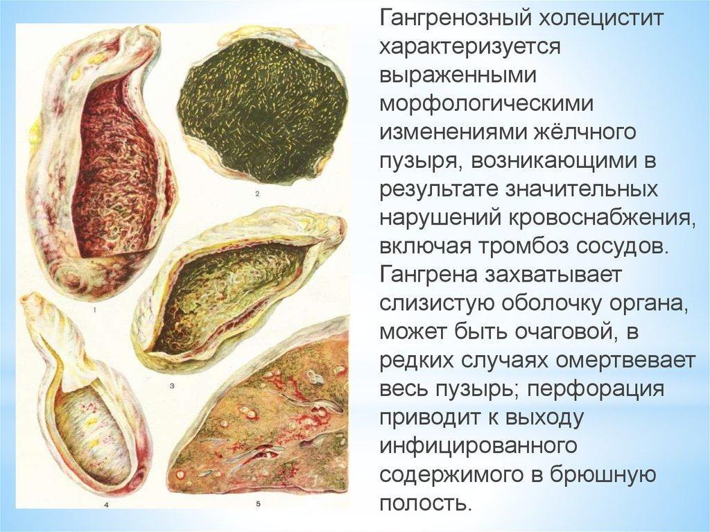 Острый гангренозный калькулезный холецистит