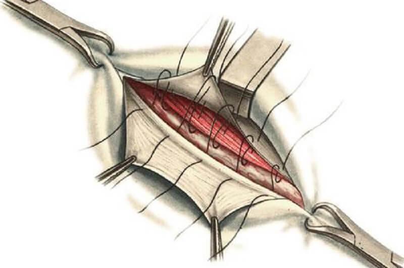 Натяжная открытая герниопластика