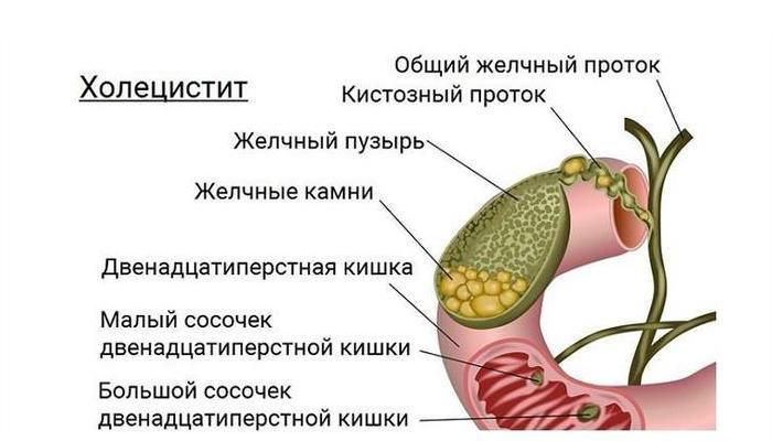Воспаление желчного пузыря