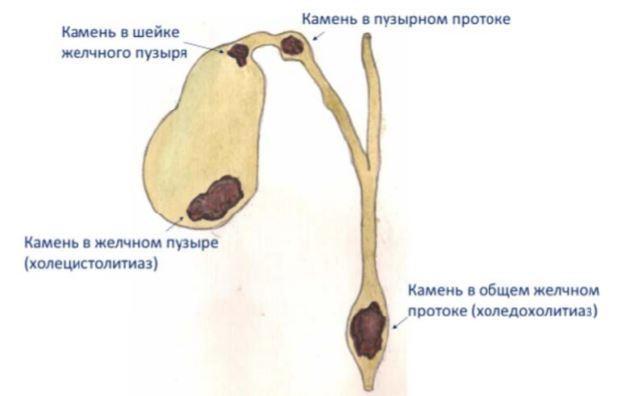 Формы холелитиаза