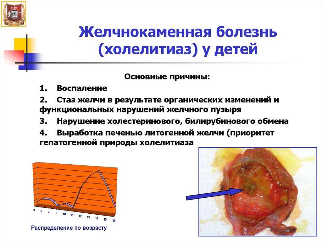 Желчнокаменная болезнь у детей