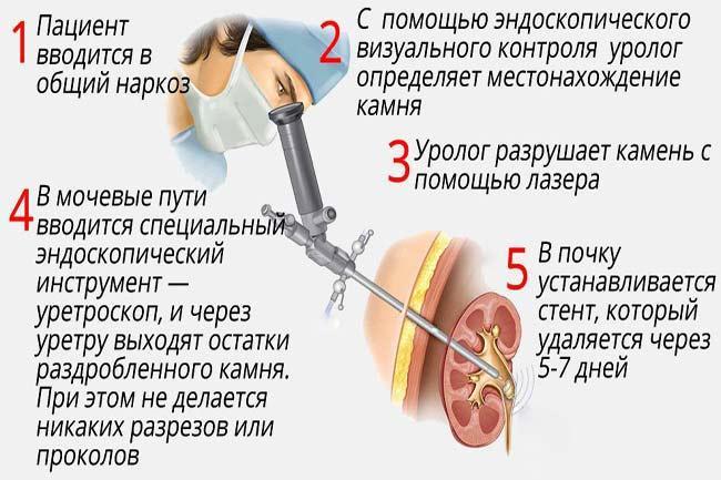Как проводят операцию по удалению камней в почках