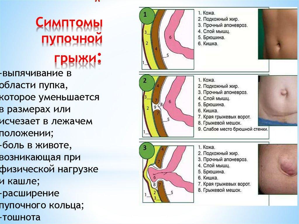 Симптомы пупочной грыжи