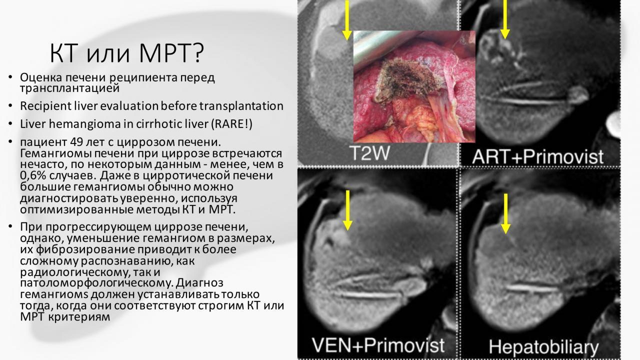 Магнитно-резонансная томография или компьютерная томография