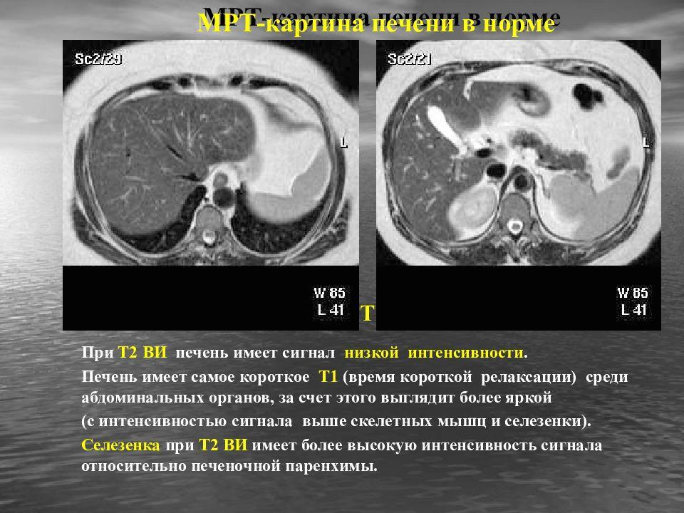 Изображение МРТ печени