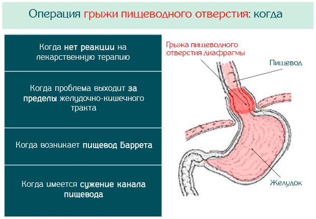 Операция при ГПОД
