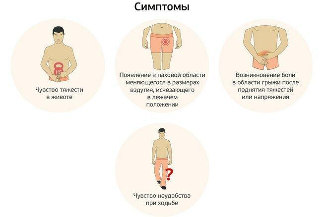 Симптоматика паховых грыж