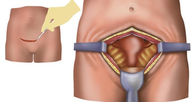 Схема абдоминальной хирургии